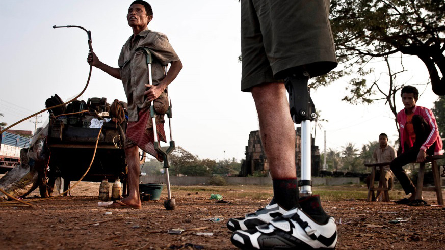 below the knee prosthetic worn by man in developing country
